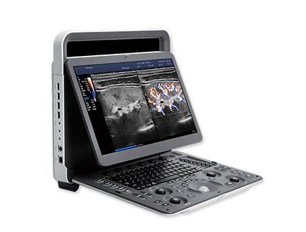 Laptop Automatic Portable Color Doppler Ultrasound Scanner